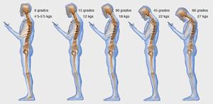Efectos del teléfono en el cuello