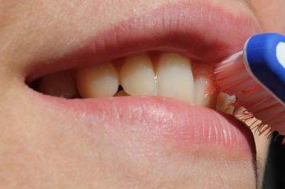 Clínica Odontologica en Murcia